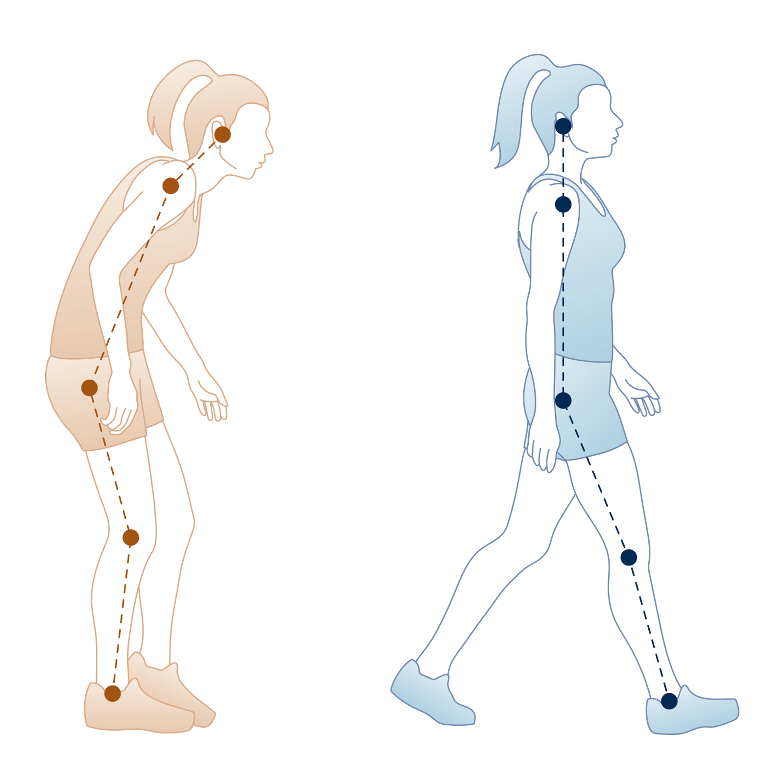The Low Back Pain Walk