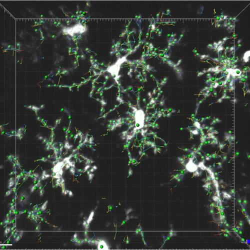 ©Dimitra Thomaidou: Intravital Brain Imaging, Quantification of Microglia,Hellenic Pasteur Institute