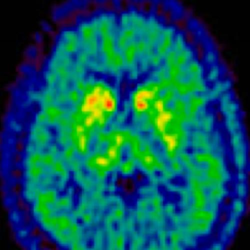 ©Thomas Beyer: PET Brain, MedUni Vienna