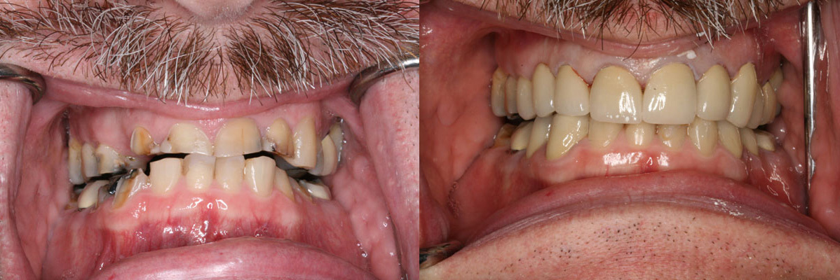 Cosmetic Dental Makeover Before and After