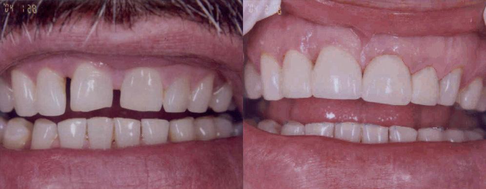 larry_dental_makeover.jpg