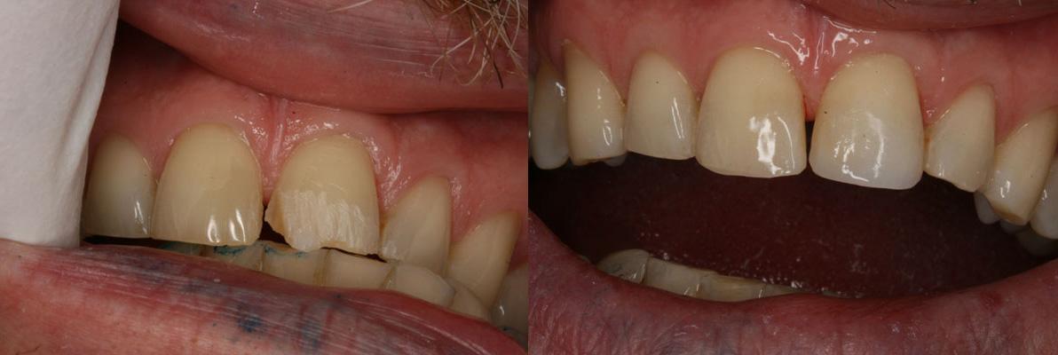 mike_dental_makeover.jpg