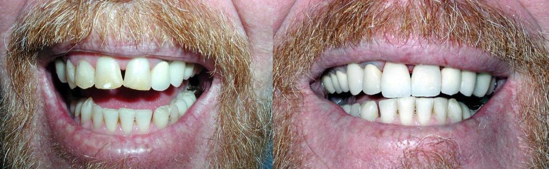 steve_dental_makeover.jpg