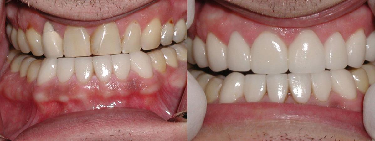 tony_dental_makeover.jpg