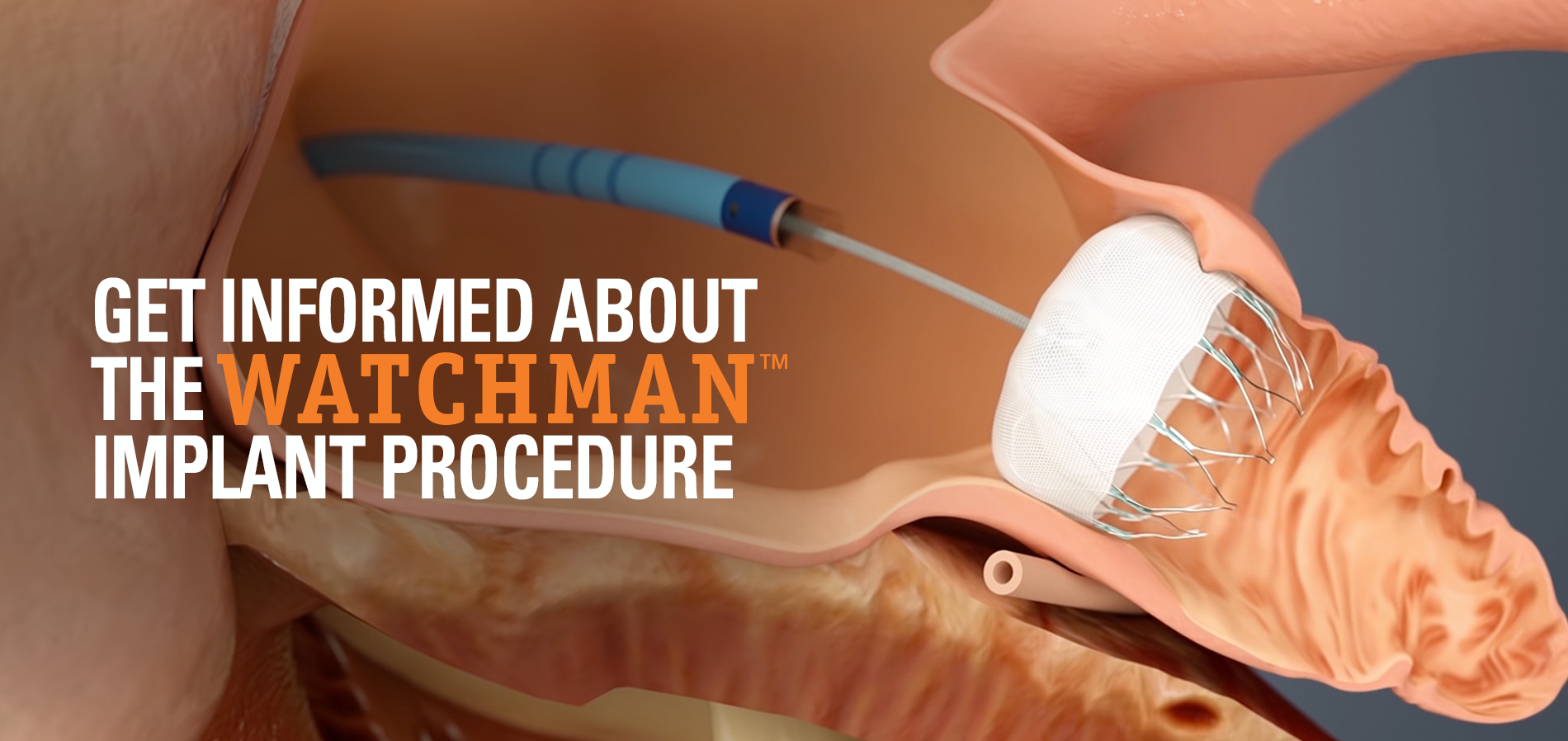 Can a Watchman Procedure Help Reduce My Risk for Stroke?