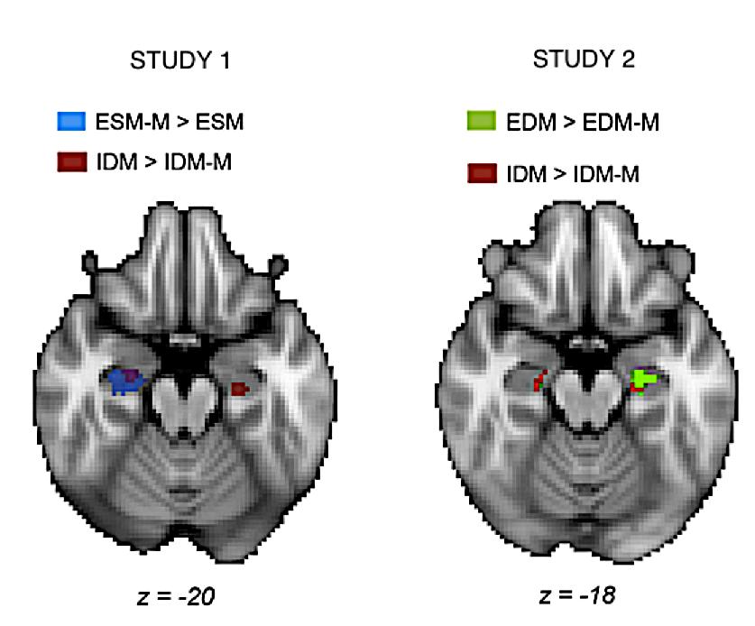 ESM-M: event sequence mismatch ESM: event sequence match IDM-M: interval duration mismatch IDM: interval duration match EDM-M: event duration mismatch EDM: event duration match