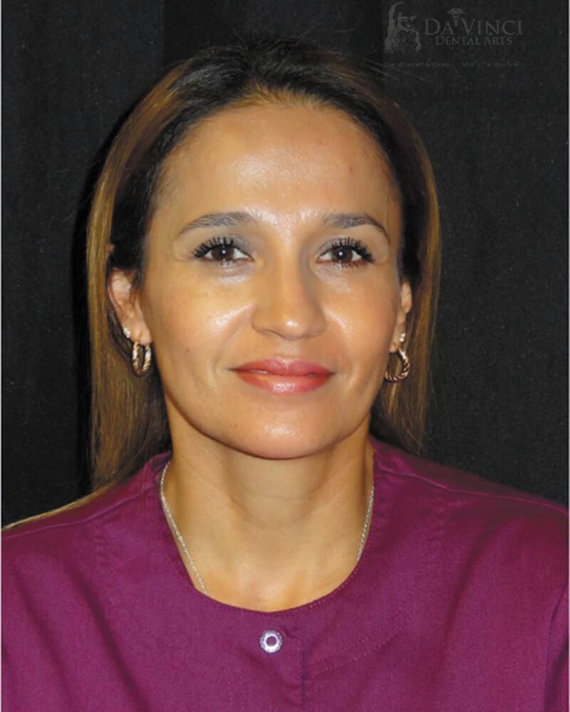 Adriana is a registered dental assistant at Da Vinci Dental Arts.