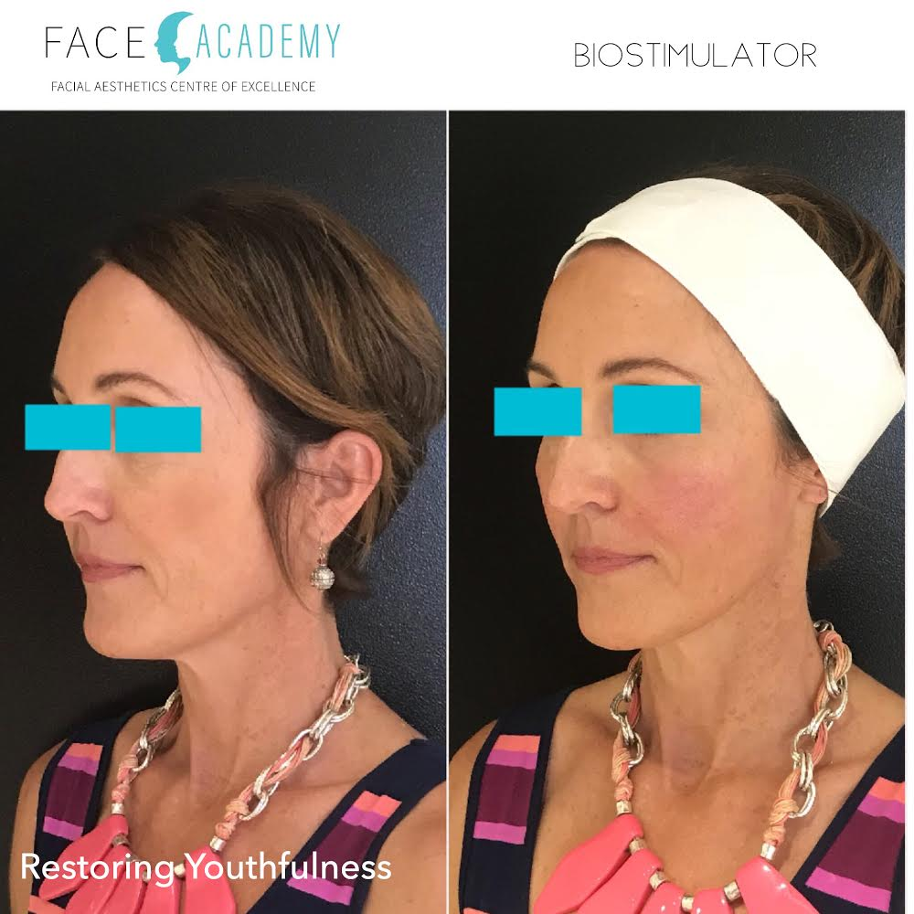 Restoring youthfullness Cosmetic medicine, injectables, fillers, Edith St medicentre, Wynnum, Australia.jpg