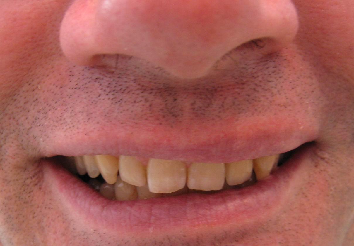 RESTORED SMILE