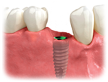 p_dentalimplant_placement.png