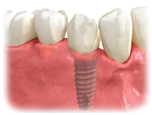 p_dentalimplant_crown.png