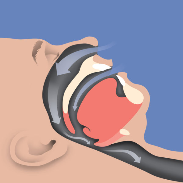 PATIENT-04-CONSTRICTED-AIRWAY-600x600.jpg