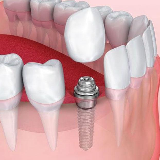 cosmetic-dental-implants.jpg