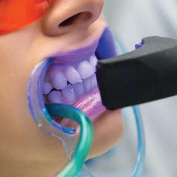 cosmetic-dental-teeth-whitening.jpg