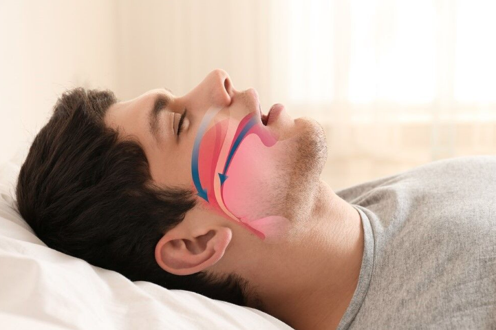 man-with-sleep-apnea