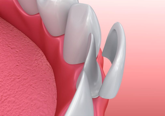 An advantage of veneers is that they remove less tooth material than crowns. The procedure is usually faster and more comfortable than a crown procedure. Veneers are recommended for teeth that have large fillings or have little structure to the tooth.