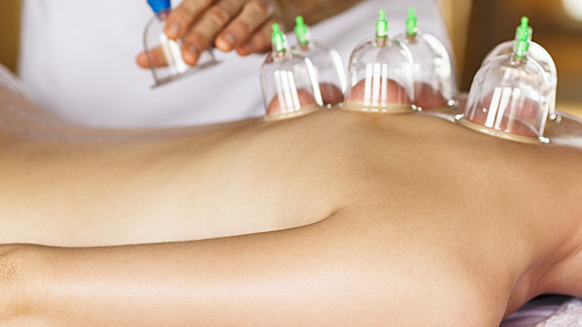 Cupping Treamtment   Cupping targets the body's connective tissue. This therapy results in a powerful detoxification of problem tissue, it will often bring trapped metabolic waste, toxins, and cellular debris to the surface in a very visual way, but these are NOT BRUISES. This results in a higher metabolism, more energy, and a reduction in bloating/water weight, and can be used to reduce cellulite. When the tissue is opened back up to circulation and proper lymph drainage, the tissue functions better overall.
