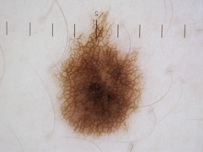 Representative of a nevus (mole) image from Dermoscopy.co.uk