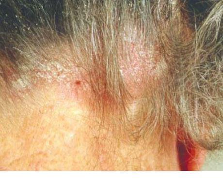 Seborrheic dermatitis in scalp, photo from Dermnetnz.org
