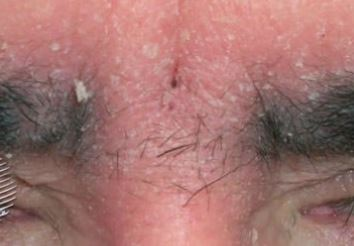 Seborrheic dermatitis on face, photo from Dermnetnz.org