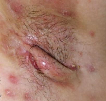 Picture of cysts and draining sinus tracts in the axilla which can be seen with Hidradenitis. Photo is attributed to Dermnetnz.org.