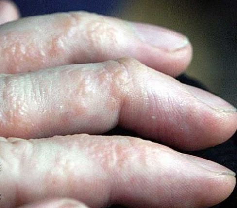 Dyshidrotic eczma. Photo from Dermnetnz.org