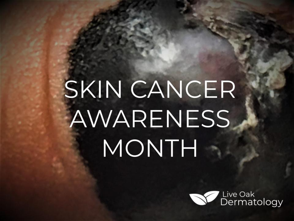 Skin Cancer Awareness Month — Live Oak Dermatology - Brent