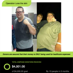Jamies panniculectomy surgery to remove excess skin after weight loss.png