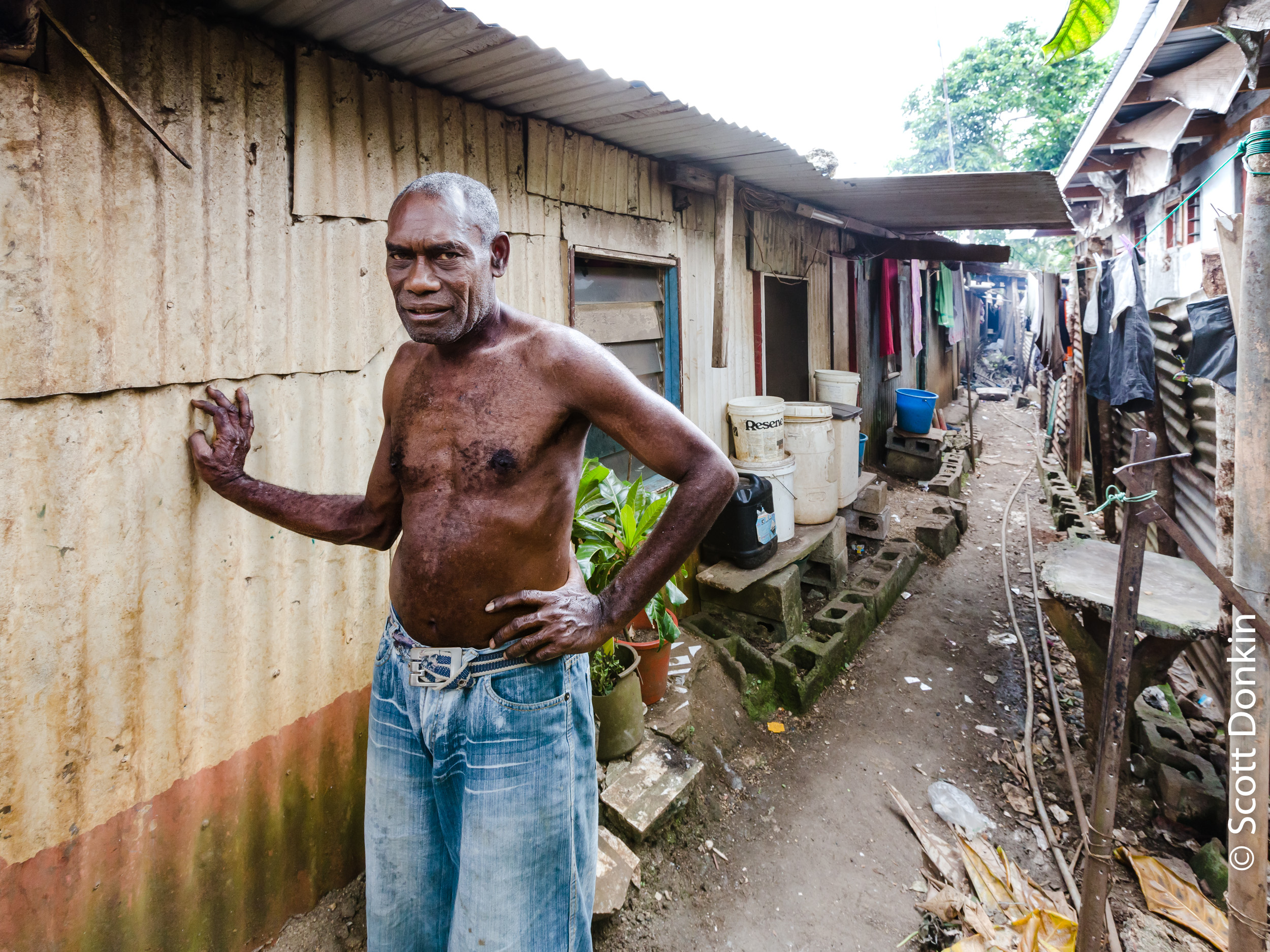 Man outside his home. Shanty town, Port Vila, Vanuatu.