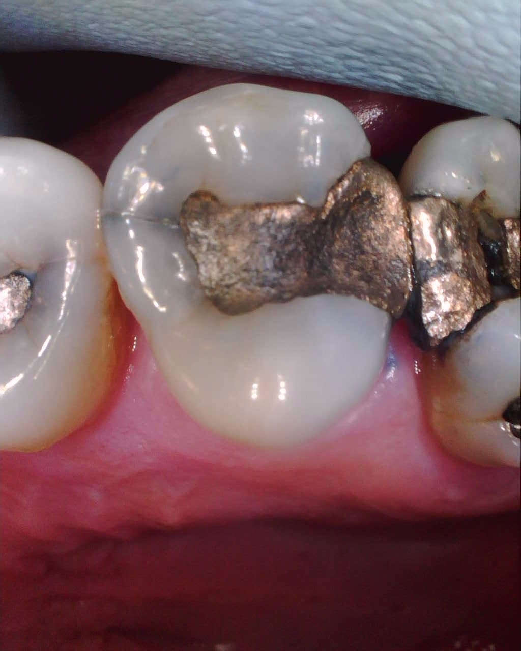 Intraoral Cameras - They say a picture is a thousand words! Let us discuss your dental treatment with a few simple pictures!