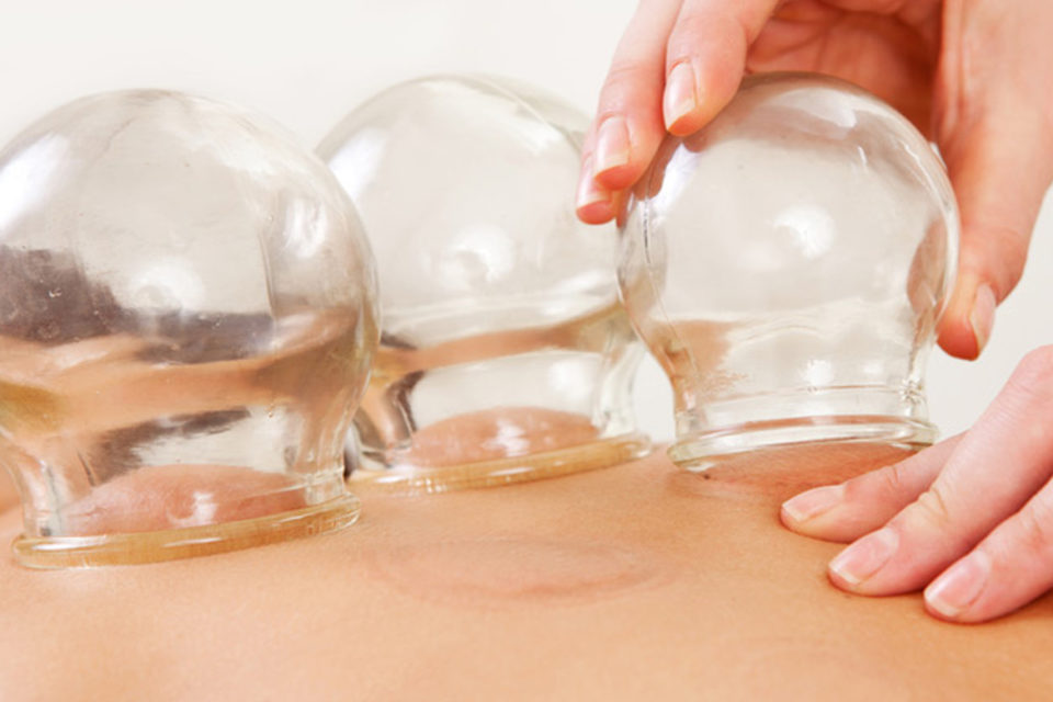 cupping-therapy-960x640.jpg