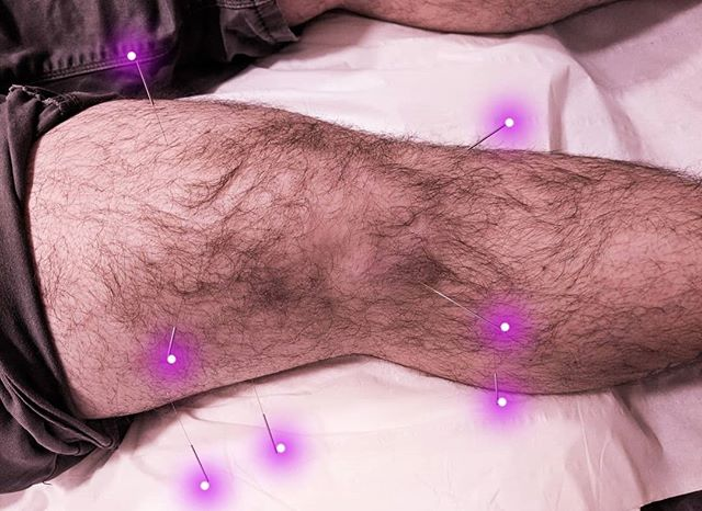 Another look at a treatment for jumper's knee (inflammation of the patellar tendon). Acupuncture needles cause microtraumas to the area and encourage blood flow to help heal the tendon and surrounding tissue.✨ Acupuncture is a great non-invasive treatment to help musculoskeletal injuries heal faster! Do you suffer from pain? Send me a DM or go to the link in my bio to book your appointment today. ✨