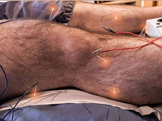 Treating more jumper's knee with a combination of Electro-acupuncture and trigger points! It works a treat! ✨