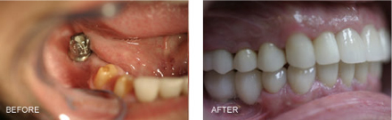 This patient had to have the right front tooth removed due to deep decay underneath an old existing crown. An implant was placed and once it had healed it was restored with an implant retained crown.