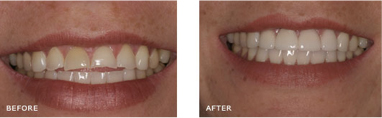 "Your smile should follow the curvature of your lower lip. As you can see in this photo, the upper teeth are worn which is creating a ""negative smile line"" and a gap between the upper and lower teeth. Veneers were placed on the upper 6 front teeth to restore them to their natural length and we created a ""positive smile line"" and closed the gap."