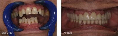 This patient had an upper Partial Denture with metal clasps to replace her upper missing teeth. On the lower she had a lower partial denture that did not fit well and was uncomfortable to wear so she mostly went without any teeth in the back on the bottom. This Full Mouth Reconstruction made such a significant difference in her appearance and in her ability to eat! A Bridge was done on the upper right and on the upper left to close the gaps from the missing teeth AND she no longer had anything removable on the top. On the lower, we had to remove the remaining lower teeth due to bone loss and mobility. We were then able to have 2 implants placed and had a denture made to snap onto these two implants for retention and stability which is difficult to attain with a Lower Complete Denture. What an amazing result! We took her picture afterwards and she wanted a copy and said it was the best picture she had ever seen of herself.