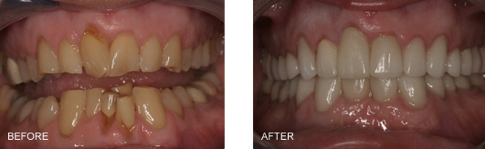 This patient had sever wear, crowding, decay in the back teeth, recession of the gums which was exposing the roots of the teeth.Treatment Included: Removal of 2 teeth on the lower in the front and a Full Mouth Makeover which required crowns on all of his teeth. This allowed us to restore the length as well as straighten them and make them beautiful. The results are dramatic!