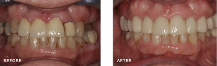 This patient was missing all of her molars on the upper right side. Also the crown next to the space was a porcelain to metal crown and therefore a dark line is showing at the gumline. The rest of her teeth were broken down and discolored on the upper. In this case, Implants were placed on the upper right and old crowns, broken down fillings and decay were replaced with new All-Ceramic Crowns with no metal. Once the Implants healed, we were able to restore them with Implant Retained Crowns and you cannot tell that she no longer has her natural teeth.