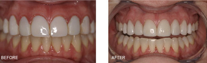 "This patient came in with Veneers that had been done by a previous dentist and she did not like that they were ""too big and too white and didn't look like her teeth"".Treatment Included: 8 Veneers with a more natural shape and color to compliment her teeth and make it look like she always had pretty teeth."