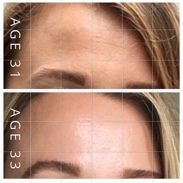 Collagen production starts declining rapidly at age 25 but we may not notice right away. While face yoga is preventative + reversal, the earlier you start the better! - This is my forehead two years apart. The first photo was taken before I started face yoga. Fast forward to my after photo of doing face yoga for a year. Glowing and plumped from increased collagen and elastin. Try my forehead exercise program for under $100, click link in profile! - We work out the body now it's time for the face! 🏋️♀️🧘🏽♀️💁🏻♀️ - - - - - - - #gracefulfaceyoga #foreheadwrinkles #smoothskin #faceyoga #faceworkout #skincareroutine #beforeandafter #transformationtuesday #agelessbeauty
