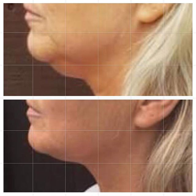 Check out that jawline + under chin! As we age, we lose the elastin in our skin so it's easier for gravity to pull our skin downward. The jawline and under chin is at the bottom of the face so you can see a lot of sagging there with age. - Facial training works the muscle and removes excess fat, making facial areas look tighter, slimmed and more toned. - We work out the body now it's time for the face! 🏋️♀️💪🏼💆🏽♀️ - - - - - - - #gracefulfaceyoga #transformationtuesday #faceyoga #faceyogaexpert #facialtraining #facialtrainer #facialexercise #facemuscles #faceworkout