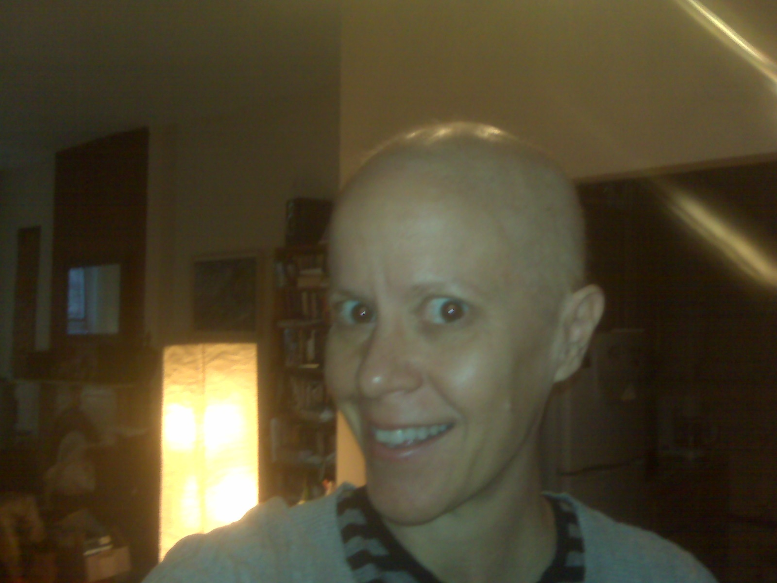 Gail with Shaved Head.jpg