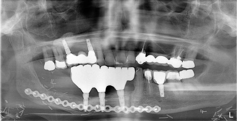 Post X-Ray