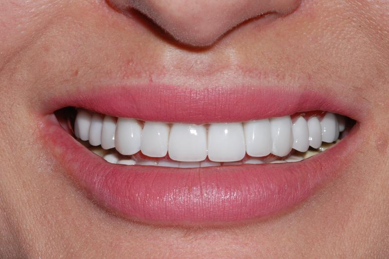 Worn/Missing Teeth