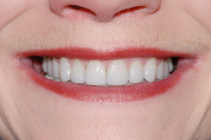 Worn Dentition