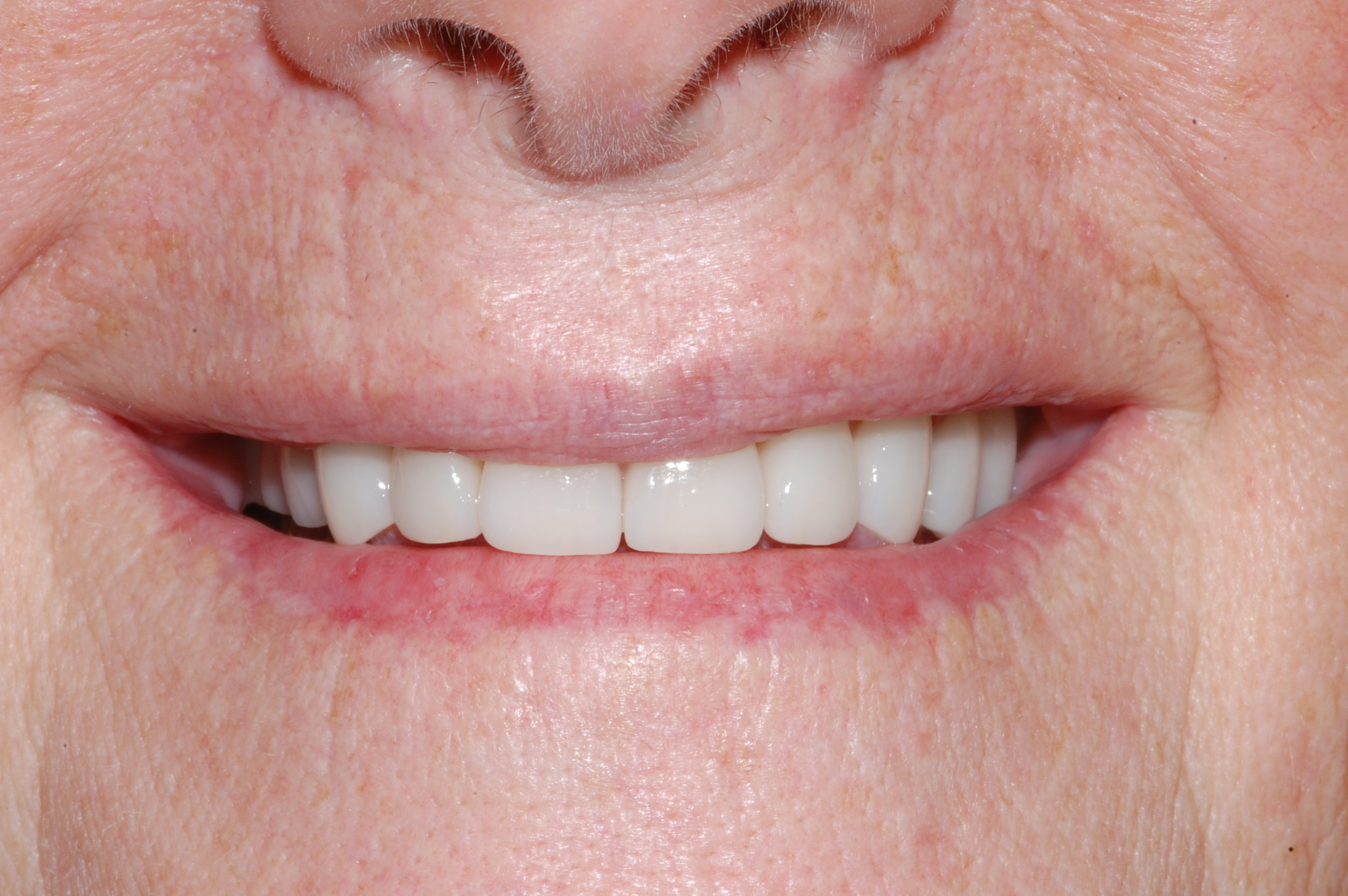 Missing Upper and Lower Posterior Teeth. Worn Anterior Teeth