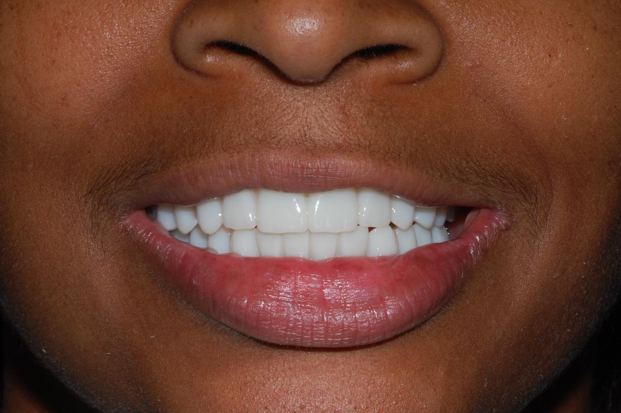 Advanced Design i.e porcelain teeth All on Four-Six Completed Treatment