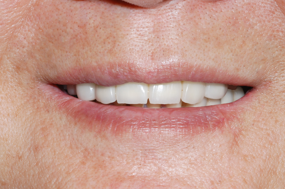 replacement-of-several-teeth-01.jpg