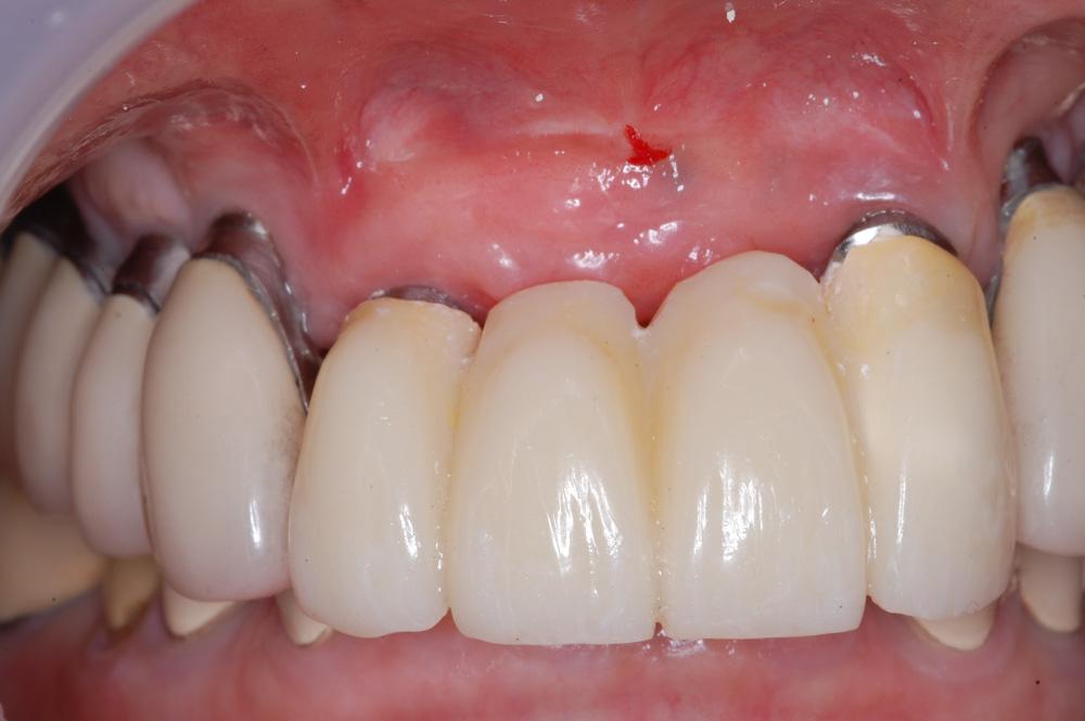 replacement-of-several-teeth-03.jpg