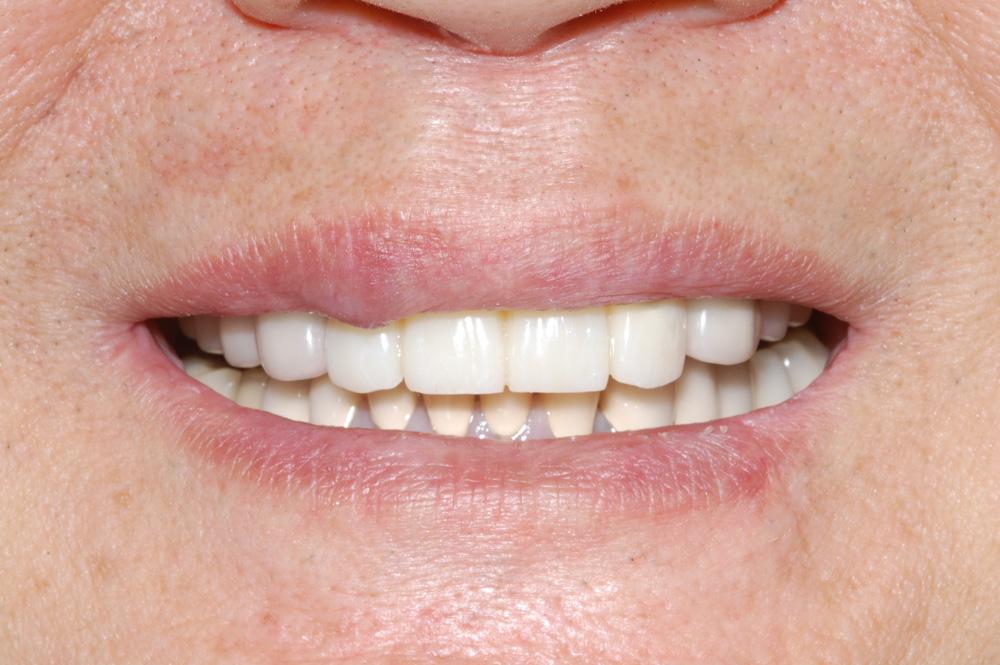 replacement-of-several-teeth-04.jpg